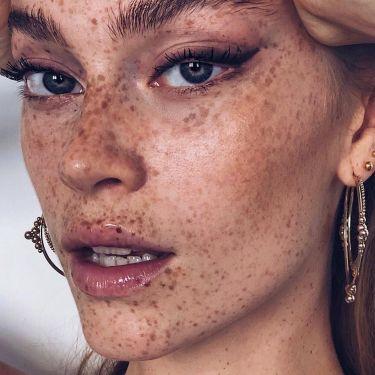 Sun Damage Skin Pigmentation - 2