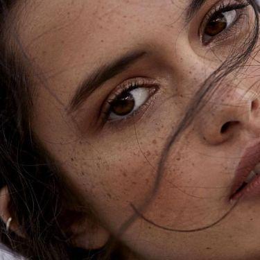 Sun Damage Skin Pigmentation - 4