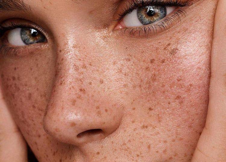Sun damage & Skin pigmentation - Cover